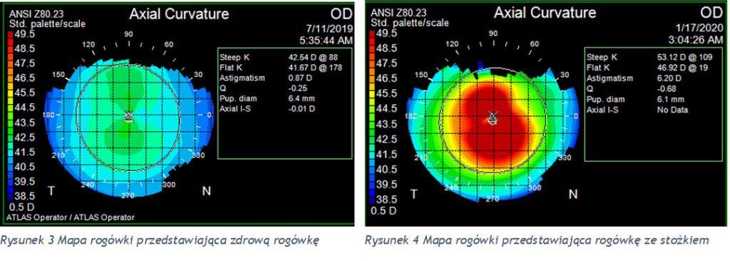 Porównanie mapy zdrowej rogówki oraz rogówki ze stożkiem